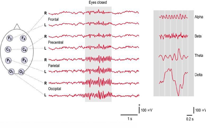 Electroencefalograma (1)